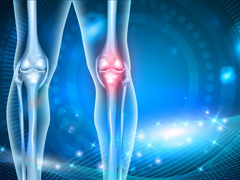 Vector image of two legs with the bones and joints visible at the knee and the left side glowing red at the knee to signify pain